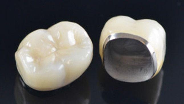 Dental Crowns Gurgaon