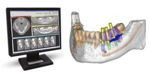 guided-implant-surgery