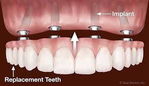 why dental implant bridges are better than dentures