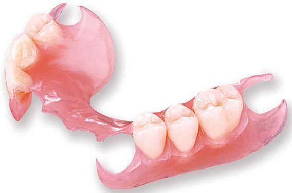 Flexible Partial Denture Cost Gurgaon