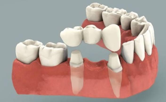 Dental Bridge in Gurugram