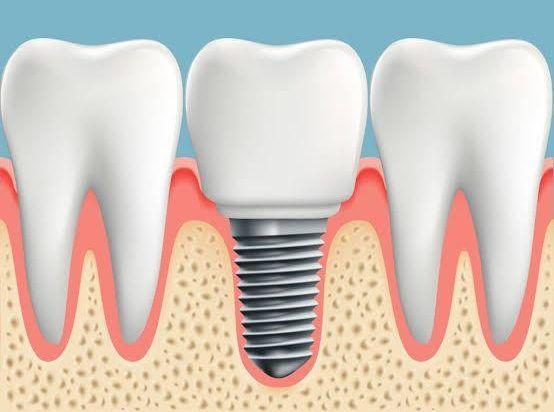 Dental Implants in Gurugram