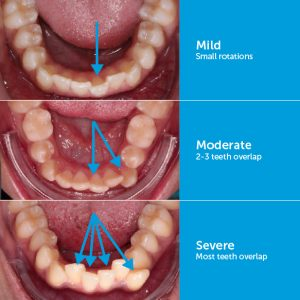Clear aligners Cost