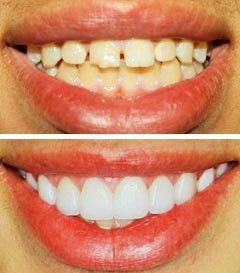 Best Dental Veneers India