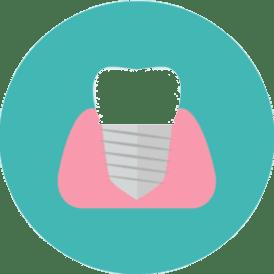 Best Dental Implants India