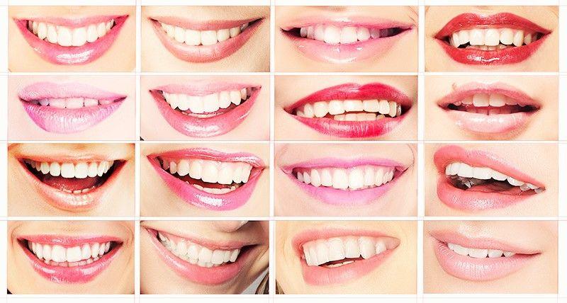 Smile Makeover Clinic Gurgaon