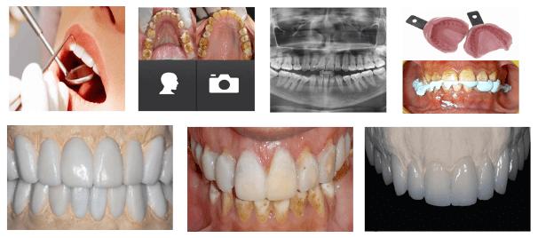 Steps of Cosmetic Dental Procedure