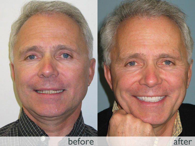 TMJ Neuromuscular dentistry