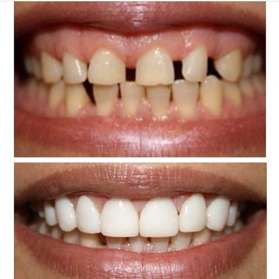 Best Cosmetic Dentist Gurgaon