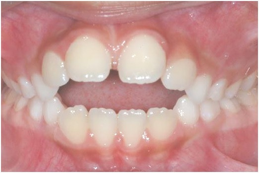 Diastema Due to Abnormal Muscle