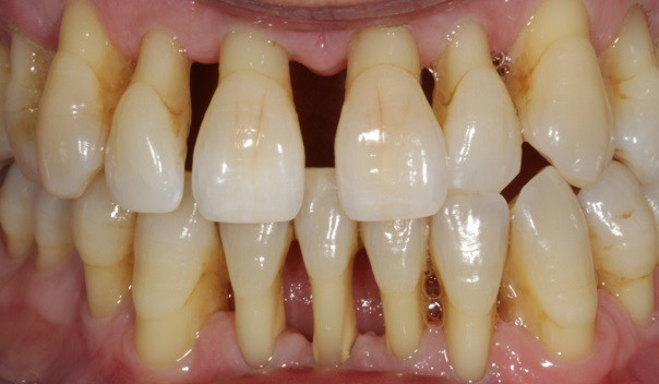 Diastema due to gum disease