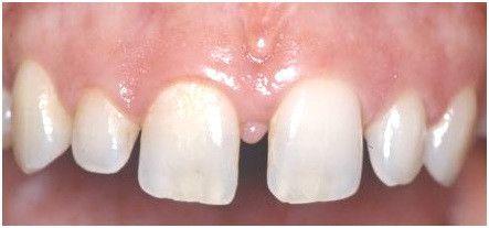 Diastema Due to Spacing in Teeth