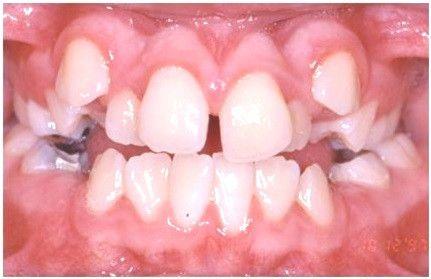 Diastema due rotated or misaligned teeth