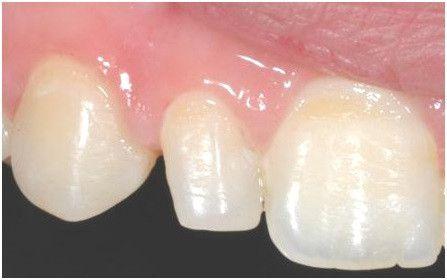 Gap in Teeth Treatment in Gurgaon